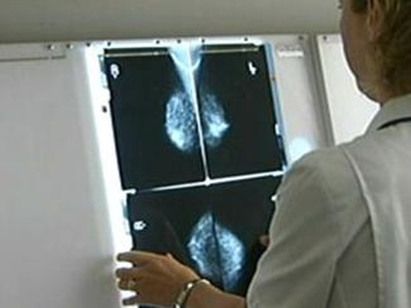Breast cancer - Report says radiotherapy should start as soon as possible