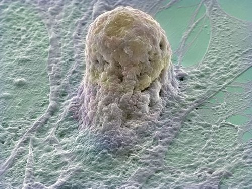 Stem cells - May have potential for various medical uses