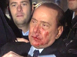 Silvio Berlusconi - Attacked last week