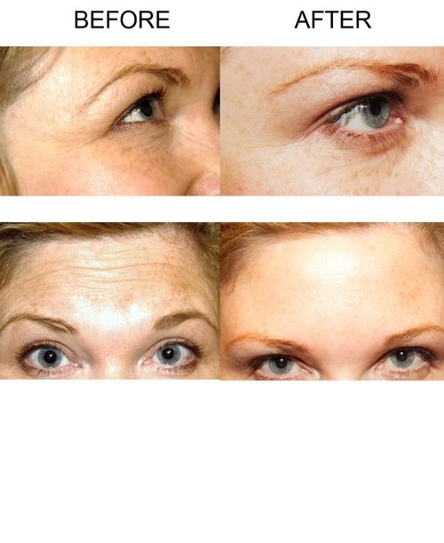 Extreme Beauty - Botox