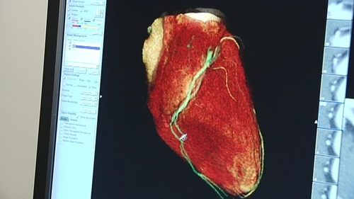 Heart failure - Drug could reduce risk of death