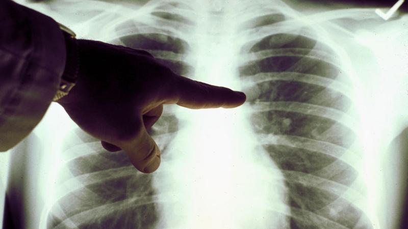 Cancer in Irelandis projected to double between nowand 2040
