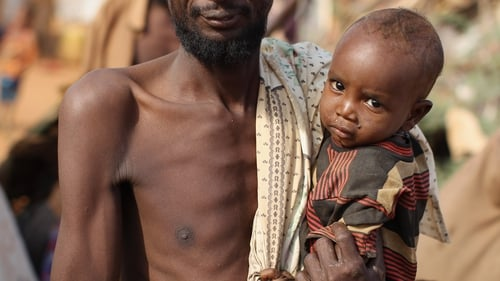 Around 149 million children  suffer from hunger-related growth delays
