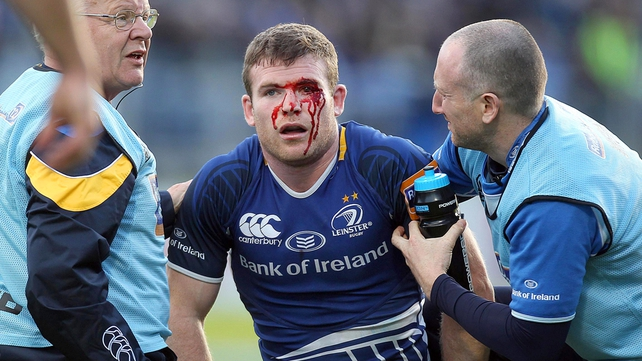 Gordon D'Arcy required stitches following this injury sustained against Glasgow Warriors