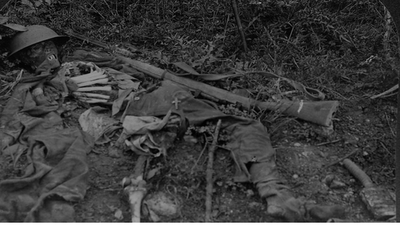 A British Army casualty  Image from World War Through the Stereoscope (Meadville, PA, 1921)