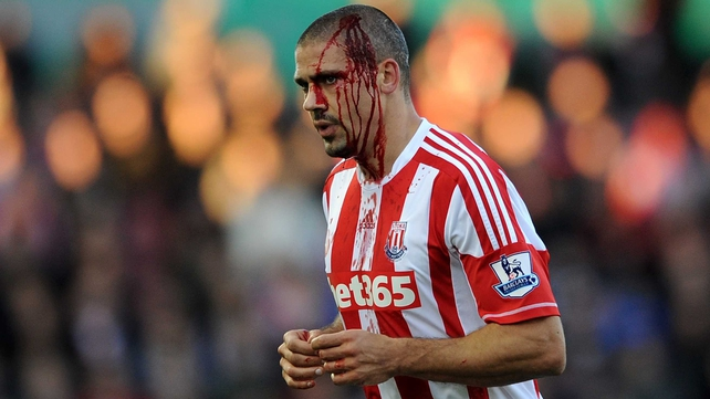 Jonathan Walters leaves the field for treatment on a head cut