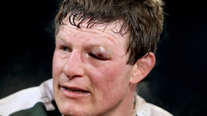 The grizzled Malcolm O'Kelly sustained a serious shiner in Donnybrook