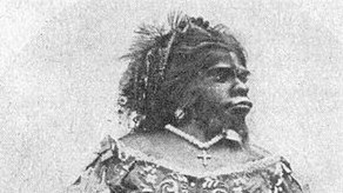 Julia Pastrana suffered from hypertrichosis and gingival hyperplasia