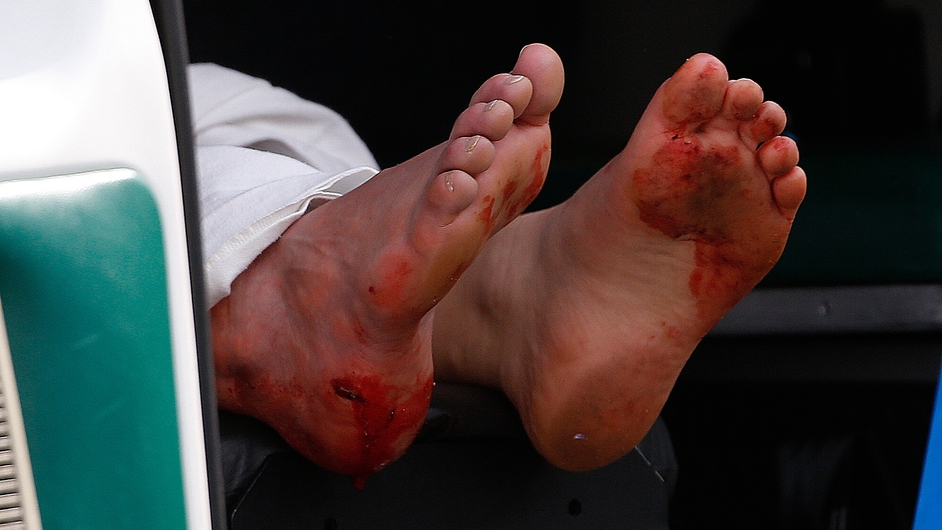 The blood stained feet of a man hang outside an ambulance outside a medical tent located near the finish after the bombs exploded