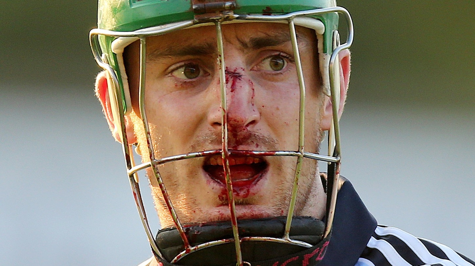 Dublin's Ryan O'Dwyer shows the wounds of battle from their draw with Wexford in the Leinster SHC quarter-final
