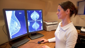 Breast cancer is the commonest cancer in women, according to the latest report
