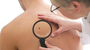 Ipilimumab is used to treat malignant melanomas
