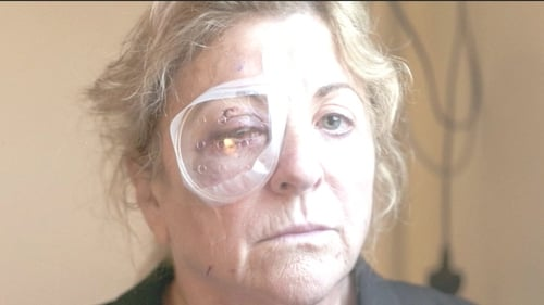 Marie Gauvin was on holidays when she was struck and sustained serious eye injuries