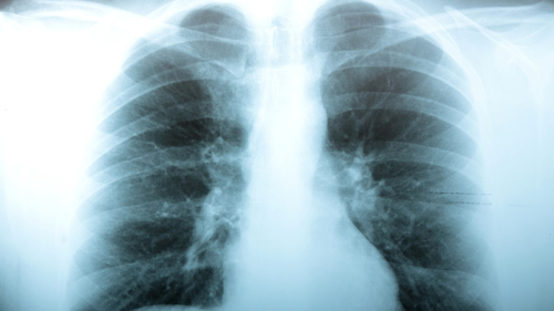 Emphysema is caused by inflammation of the alveoli, the sponge-like tissues that take oxygen into the lungs