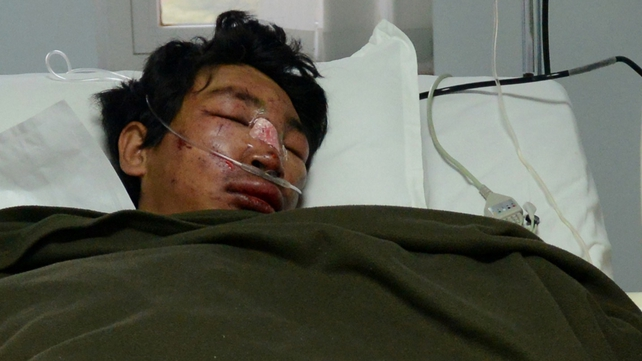 Dawa Tashi Sherpa is recovering after being buried neck-deep in snow