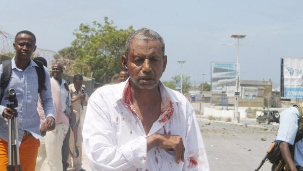 A wounded man walks by journalists following the attack