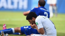 Suarez bites off more than he can chew