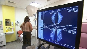 Until now there has been no reliable way of predicting the likelihood of non-inherited breast cancer