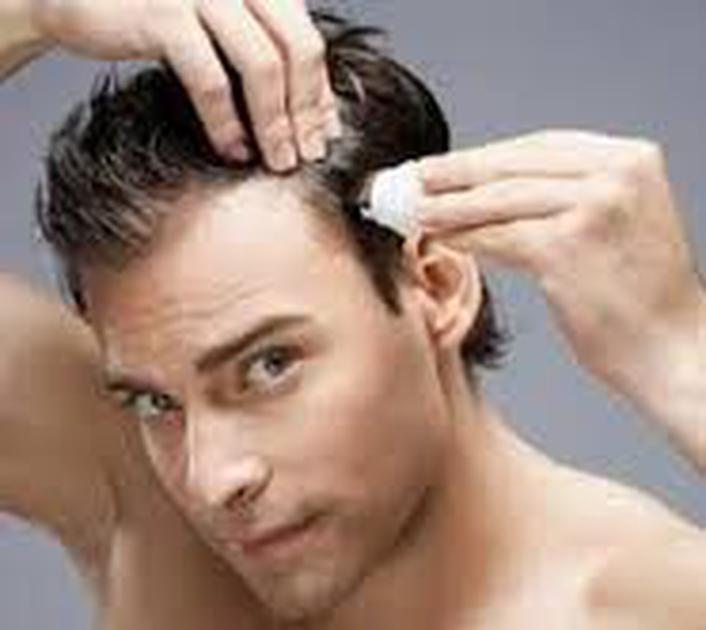 Men's Hair Dyeing - Barry Whitelaw