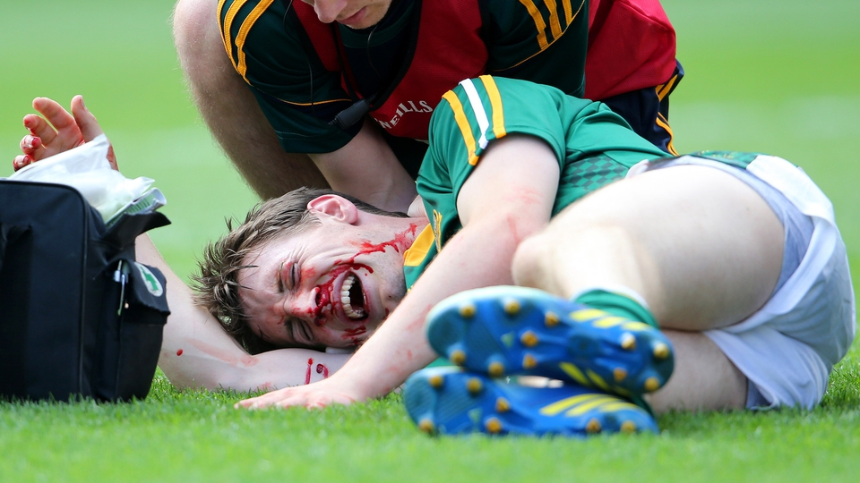 Meath's Brian McMahon receives treatment for a blood injury during the Leinster final