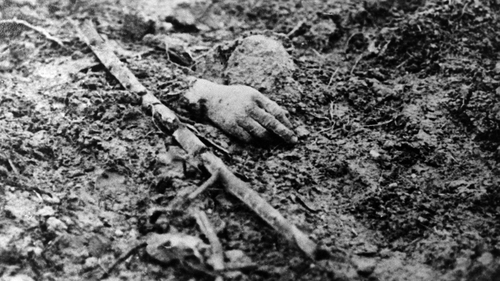 A victim's hand on a battlefield in the north of France. The war cost the life of 1,357,000 French soldiers and 1,773,700 German soldiers