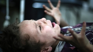 A boy screams as a doctor removes shrapnel from his leg in the rebel-held town of Douma, northeast of the Syrian capital Damascus 3 July 2014