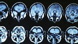 Prime Time Extras: Brain Injury Funding