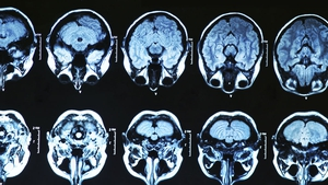 During adolescence, the brain undergoes widespread re-wiring that involves 'synaptic pruning'