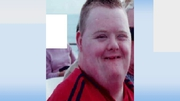 David Dempsey, who has Down syndrome, usually wears a Manchester Utd jersey