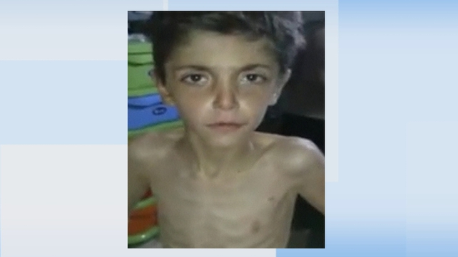 Amateur video uploaded to the internet shows an emaciated young boy from the Syrian town of Madaya