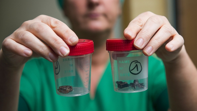A nurse of the 'Campus Gasthuisberg UZ' hospital in Leuven, outside Brussels, shows fragments of iron shrapnel found in the bodies of the victims