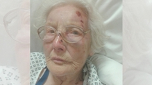 Eva Sutton sustained a punctured lung, broken ribs and a broken nose
