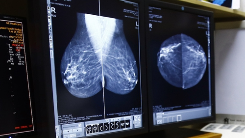The new drug called THZ-1 is capable of halting the growth of triple negative breast cancer