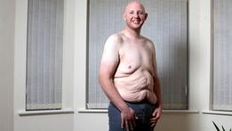 My Baggy Body