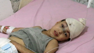 A young Syrian boy receives treatment at a hospital in the regime-held part of Aleppo