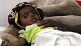Massive funds needed to avert Yemen famine - UN