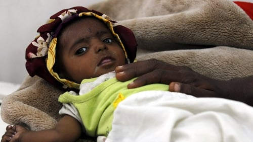 A malnourished child receives treatment at a hospital in Sanaa