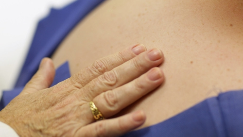 Five-year survival rates for cancer have improved