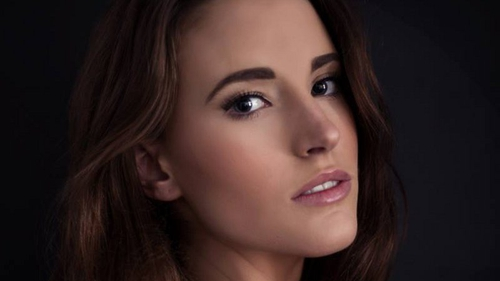 Cork model Katie O'Donoghue says she fears she will lose work after being left scarred. Picture credit: Fraser Models