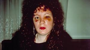 Nan Goldin - Nan one month after being battered, 1984
