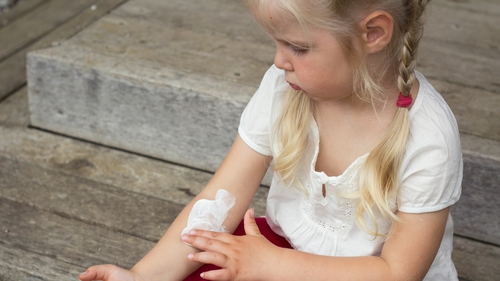 Eczema: Everything You Need to Know
