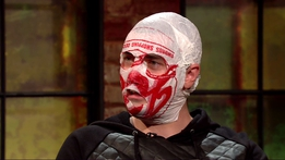 Blindboy Boatclub | The Late Late Show