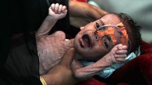 Seven million people are already at risk of famine in Yemen