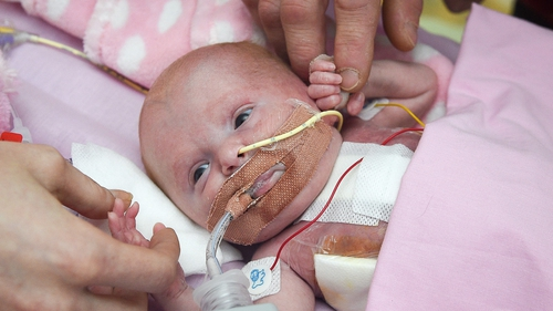 Miracle baby born with heart outside body due to extremely rare condition