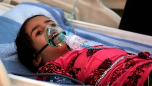 A Yemeni child suffering from diphtheria in hospital in the capital Sanaa - one of the few health centres still operational