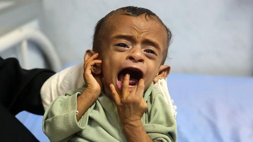 More than 11 million Yemeni children need humanitarian assistance