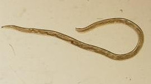 The worms are less than 1.27cm long (Pic: CDC)