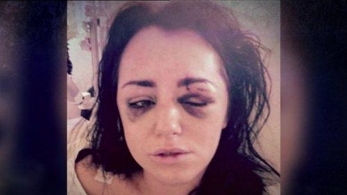Jessica Bowes was left with fractured eye sockets, skull and face, and a shattered cheek bone after an assault by an ex in 2015