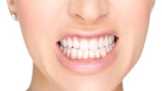 Essay:  teeth, teeth, teeth