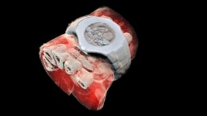 A 3D image of a wrist with a watch showing part of the finger bones in white and soft tissue in red. Photo: MARS Bioimaging Ltd